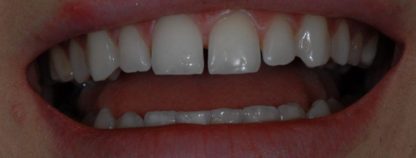 Gaps between my teeth before treatment