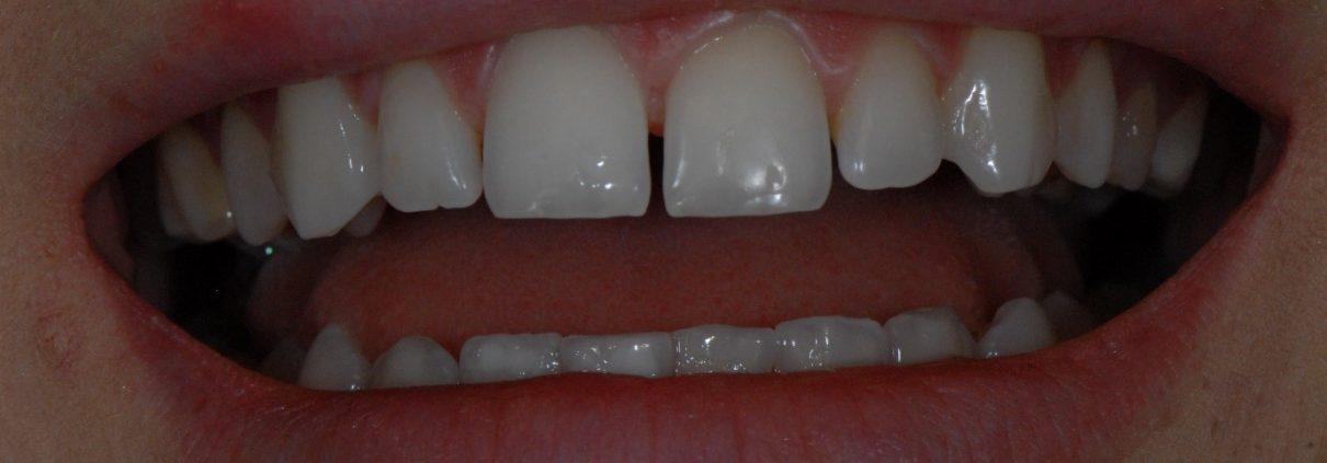 Gaps between my teeth before treatment